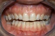 Ottimizzazione del sorriso, sbiancamento - prima