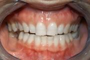 Ottimizzazione del sorriso, sbiancamento - dopo