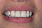 Corone in zirconia e ceramica